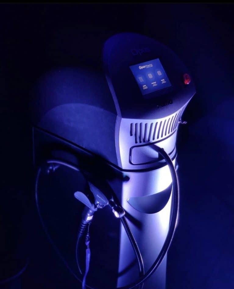 Opus Plasma Laser Treatment