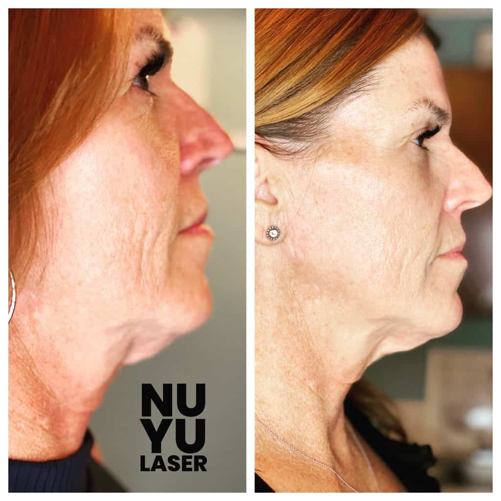 Opus Plasma Treatment Before & After